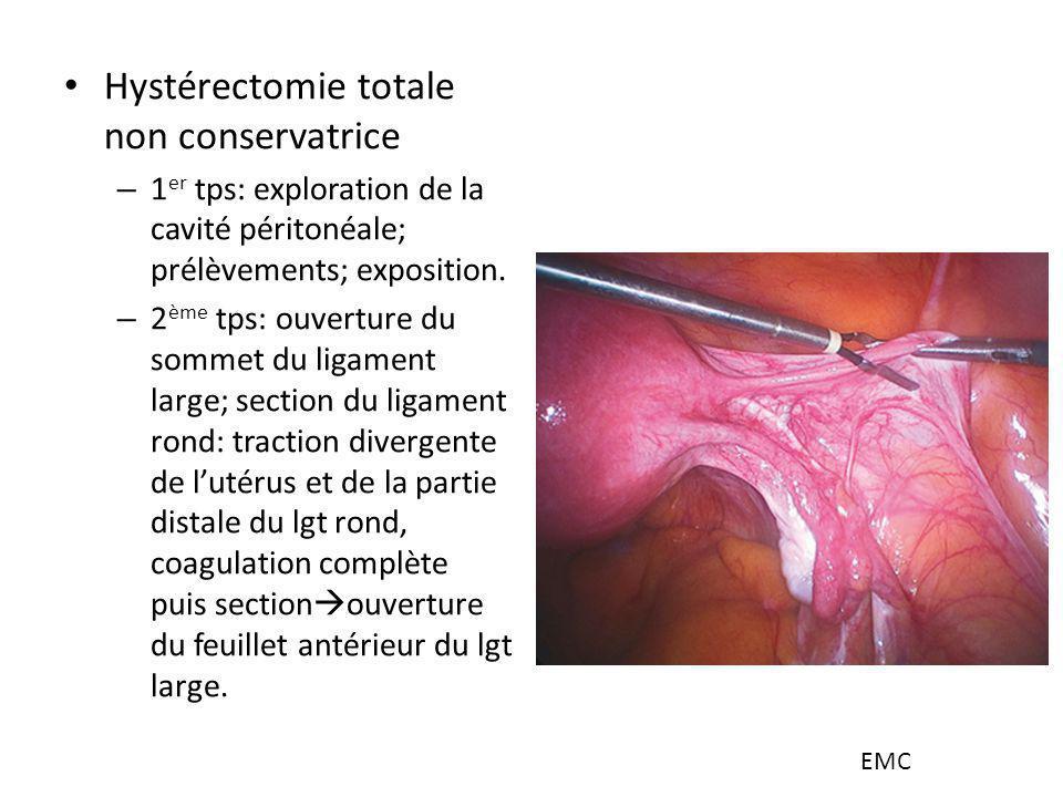Hystérectomie totale non conservatrice – 1 er tps: exploration de la cavité péritonéale; prélèvements; exposition. – 2 ème tps: ouverture du sommet du
