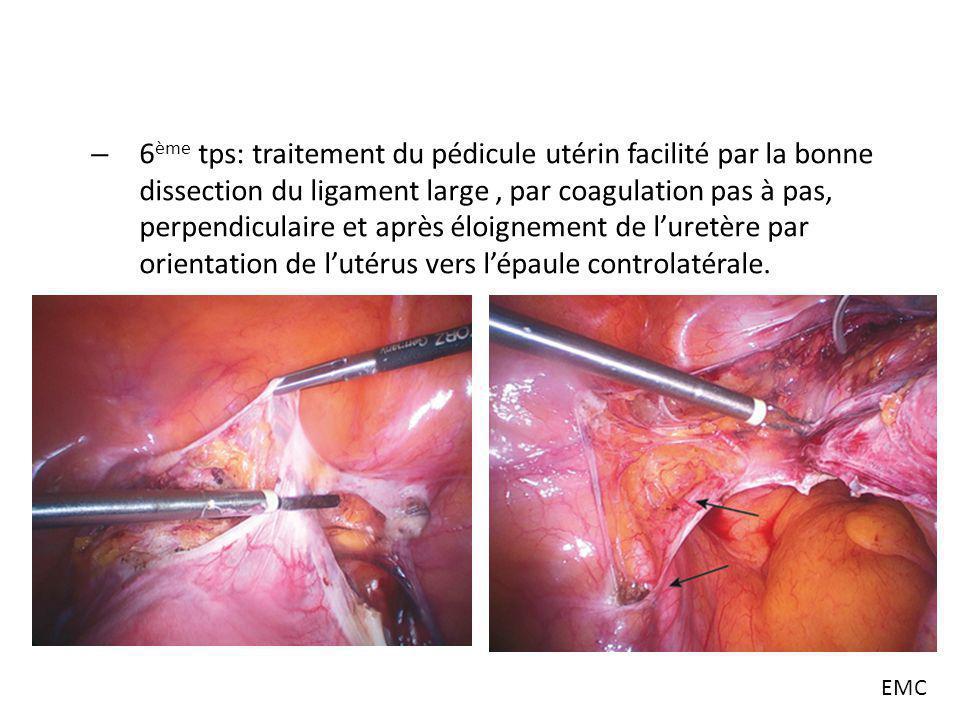 – 6 ème tps: traitement du pédicule utérin facilité par la bonne dissection du ligament large, par coagulation pas à pas, perpendiculaire et après élo