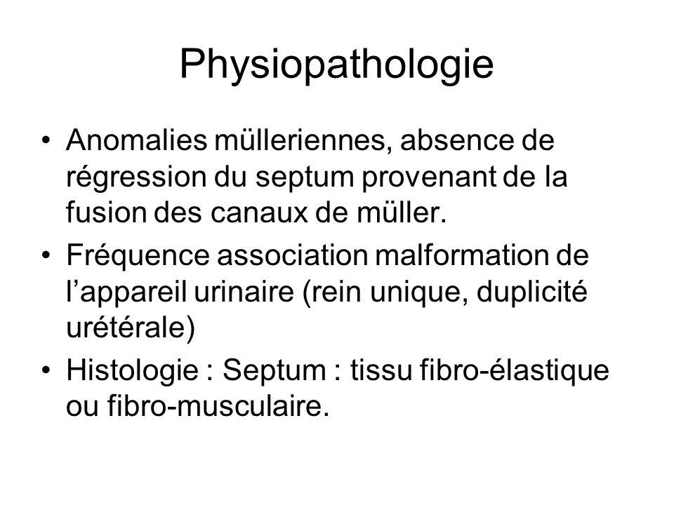 Physiopathologie Anomalies mülleriennes, absence de régression du septum provenant de la fusion des canaux de müller. Fréquence association malformati