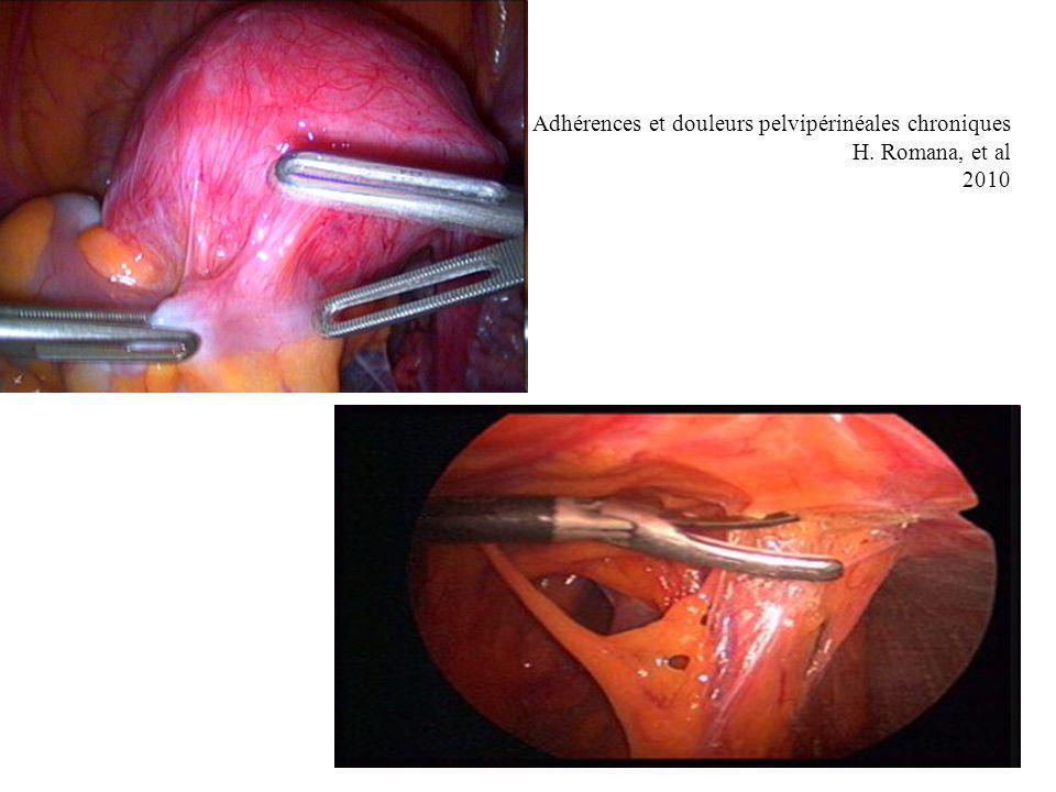 Adhésiolyse coelioscopique Contres indications –Antécédent de péritonite stercorale, avec cicatrice médiane.
