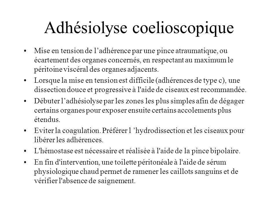 Adhésiolyse coelioscopique Mise en tension de ladhérence par une pince atraumatique, ou écartement des organes concernés, en respectant au maximum le