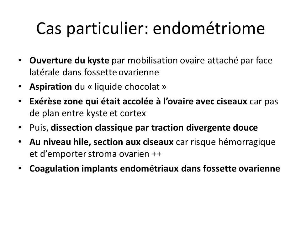Cas particulier: endométriome Ouverture du kyste par mobilisation ovaire attaché par face latérale dans fossette ovarienne Aspiration du « liquide cho
