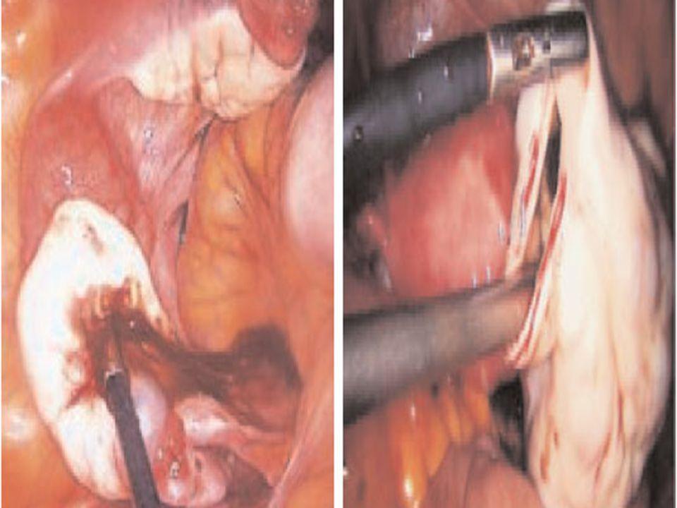 Technique chirurgicale (4) Kystectomie intra péritonéale Paroi kyste et corticale ovarienne saisies avec pinces atraumatiques, kystectomie faite par TRACTION DIVERGENTE Si kyste volumineux, garder maximum de parenchyme ovarien