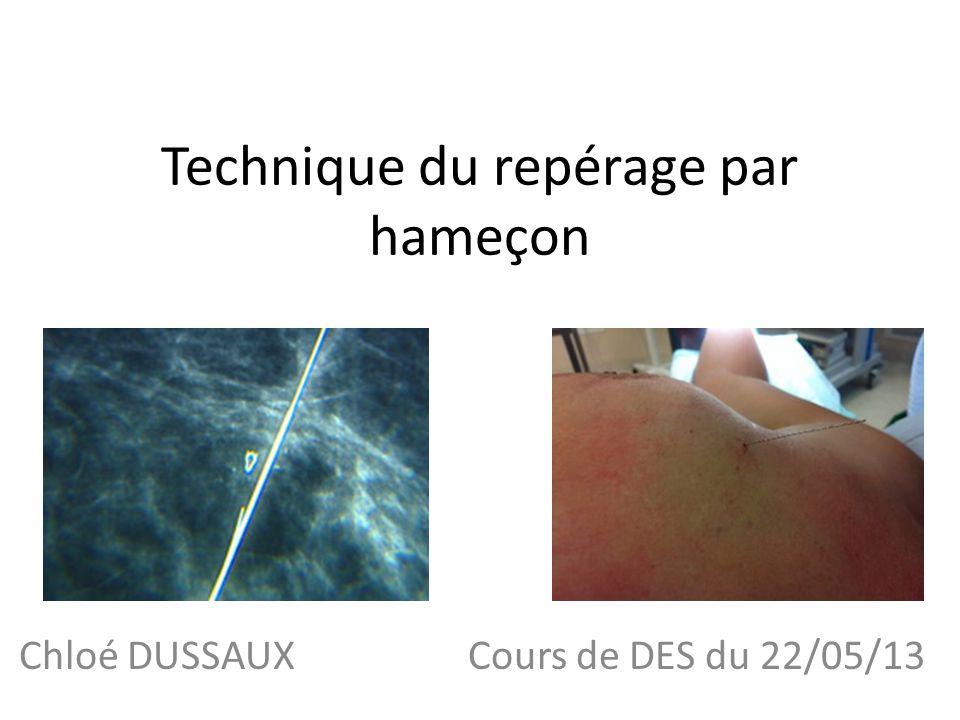 Technique du repérage par hameçon Chloé DUSSAUX Cours de DES du 22/05/13