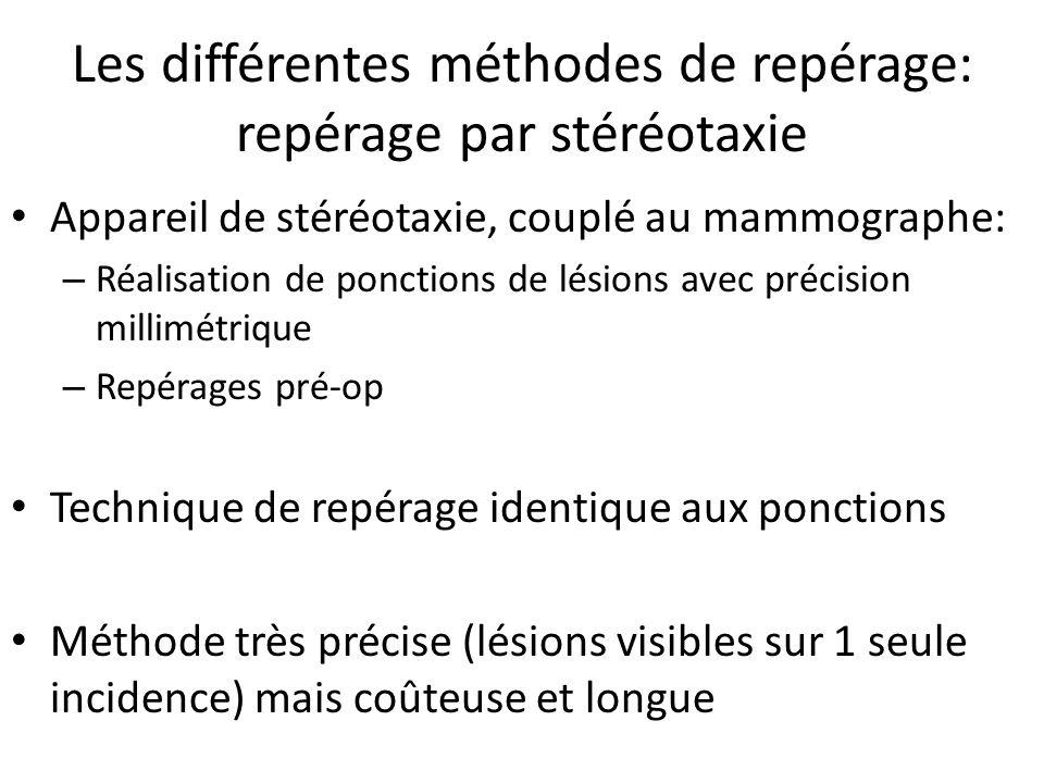 Les différentes méthodes de repérage: repérage par stéréotaxie Appareil de stéréotaxie, couplé au mammographe: – Réalisation de ponctions de lésions a