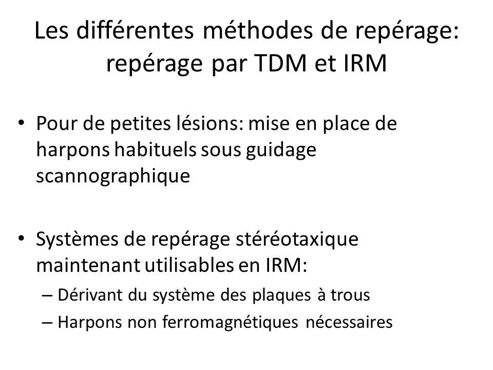 Les différentes méthodes de repérage: repérage par TDM et IRM Pour de petites lésions: mise en place de harpons habituels sous guidage scannographique