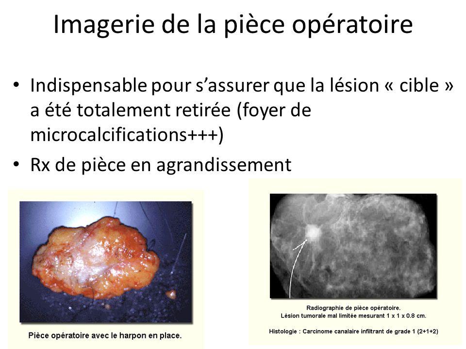 Imagerie de la pièce opératoire Indispensable pour sassurer que la lésion « cible » a été totalement retirée (foyer de microcalcifications+++) Rx de p