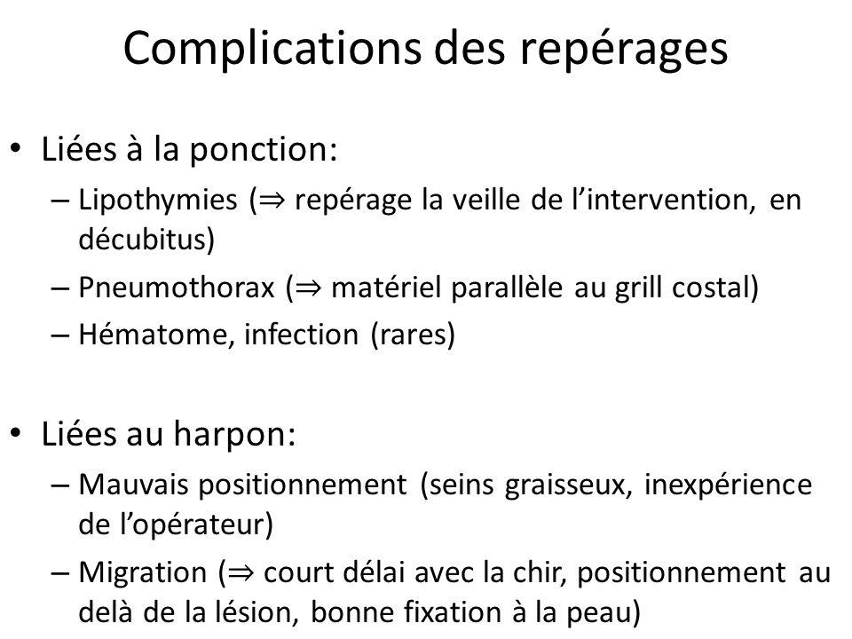 Complications des repérages Liées à la ponction: – Lipothymies ( repérage la veille de lintervention, en décubitus) – Pneumothorax ( matériel parallèl