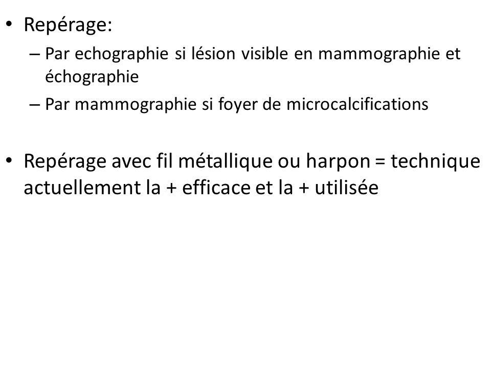 Repérage: – Par echographie si lésion visible en mammographie et échographie – Par mammographie si foyer de microcalcifications Repérage avec fil méta