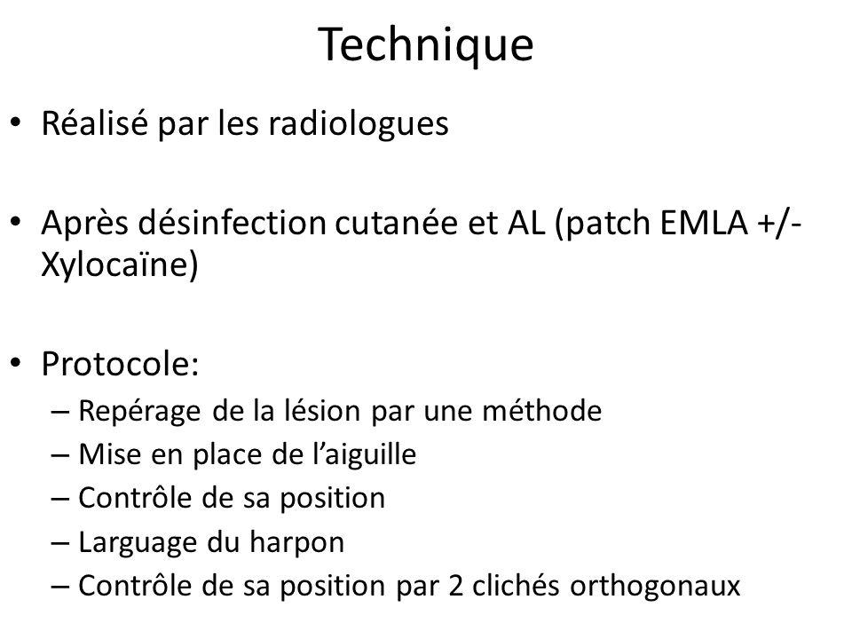 Technique Réalisé par les radiologues Après désinfection cutanée et AL (patch EMLA +/- Xylocaïne) Protocole: – Repérage de la lésion par une méthode –