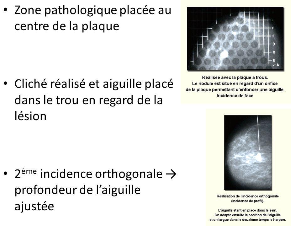 Zone pathologique placée au centre de la plaque Cliché réalisé et aiguille placé dans le trou en regard de la lésion 2 ème incidence orthogonale profo