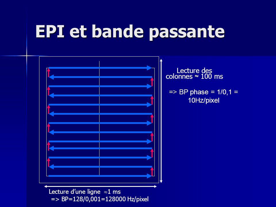 EPI et bande passante Lecture dune ligne 1 ms => BP=128/0,001=128000 Hz/pixel Lecture des colonnes 100 ms => BP phase = 1/0,1 = 10Hz/pixel