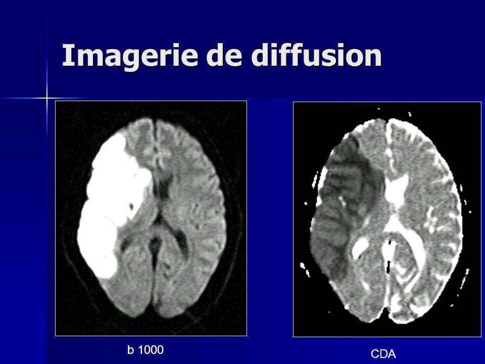 b 1000 CDA Imagerie de diffusion