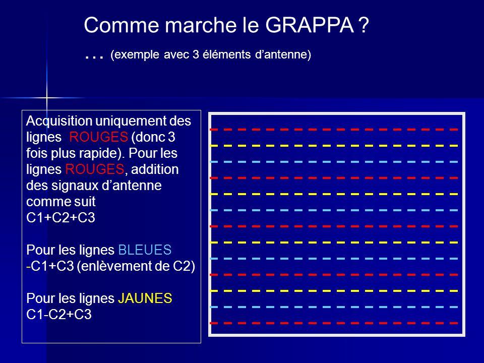 Comme marche le GRAPPA ? … (exemple avec 3 éléments dantenne) Acquisition uniquement des lignes ROUGES (donc 3 fois plus rapide). Pour les lignes ROUG