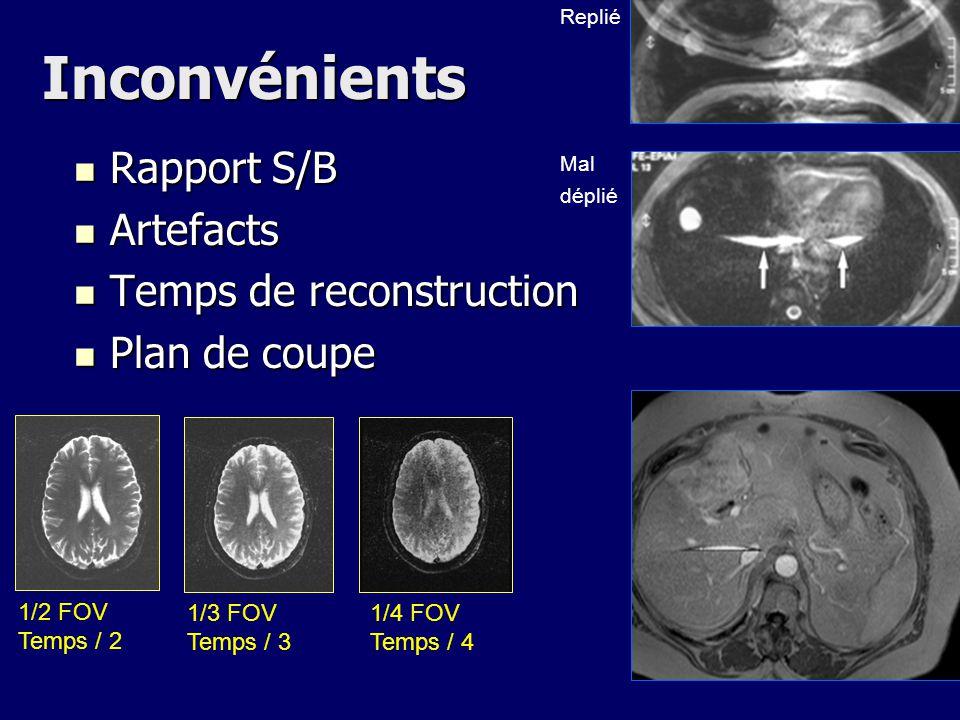 Inconvénients Rapport S/B Rapport S/B Artefacts Artefacts Temps de reconstruction Temps de reconstruction Plan de coupe Plan de coupe 1/2 FOV Temps /