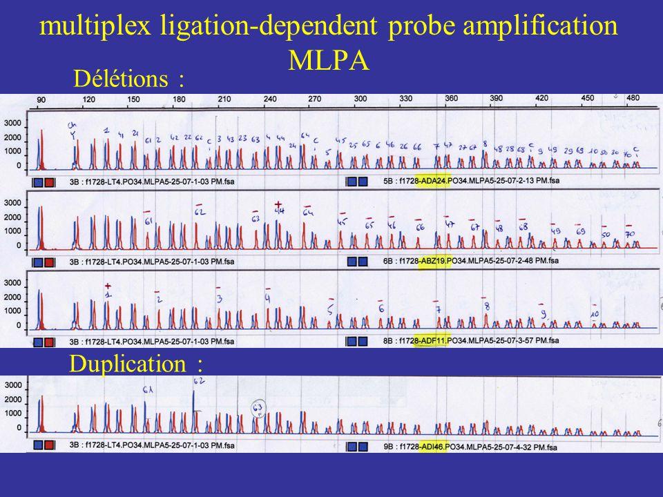 multiplex ligation-dependent probe amplification MLPA Délétions : Duplication :