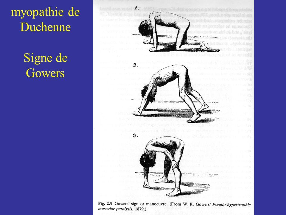 myopathie de Duchenne Signe de Gowers