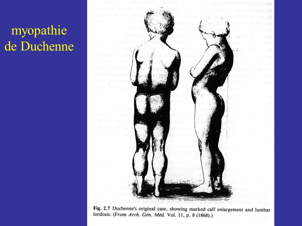 Dystrophie musculaire de Duchenne atteintedes muscles proximaux du diaphragme du muscle cardiaque retard mental dans un tiers des cas