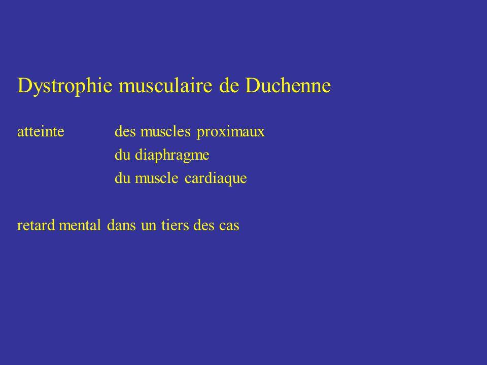 Dystrophies musculaires de Duchenne et de Becker liées au chromosome X dystrophie musculaire de Duchenne perte de la marche avant 13 ans dystrophie musculaire de Becker perte de la marche après 15 ans