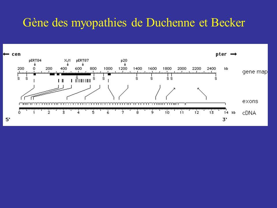 Western blot de la dystrophine
