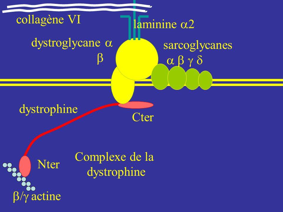 Dystrophies musculaires progressives proximales dystrophies m.