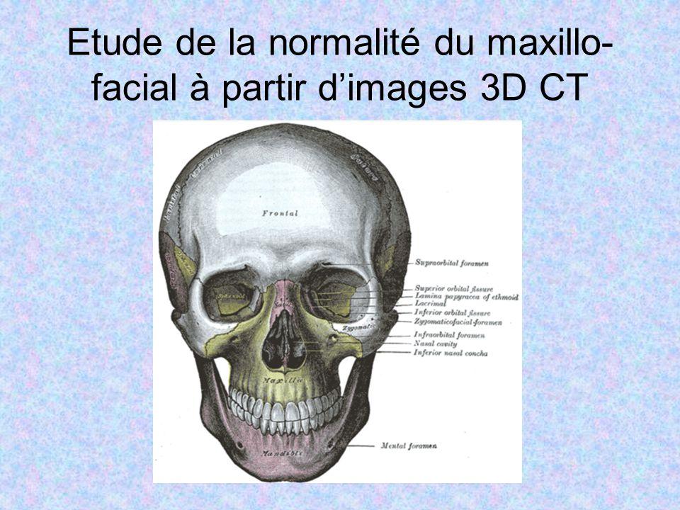 Etude de la normalité du maxillo- facial à partir dimages 3D CT