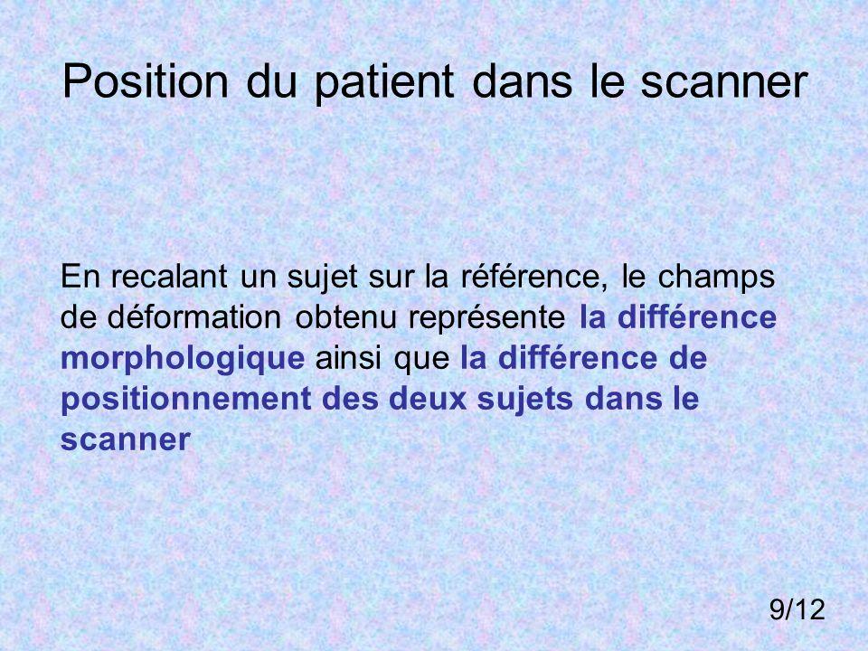 Position du patient dans le scanner En recalant un sujet sur la référence, le champs de déformation obtenu représente la différence morphologique ains