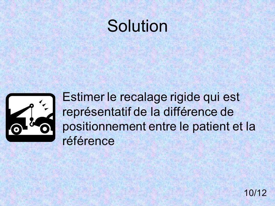 Solution Estimer le recalage rigide qui est représentatif de la différence de positionnement entre le patient et la référence 10/12