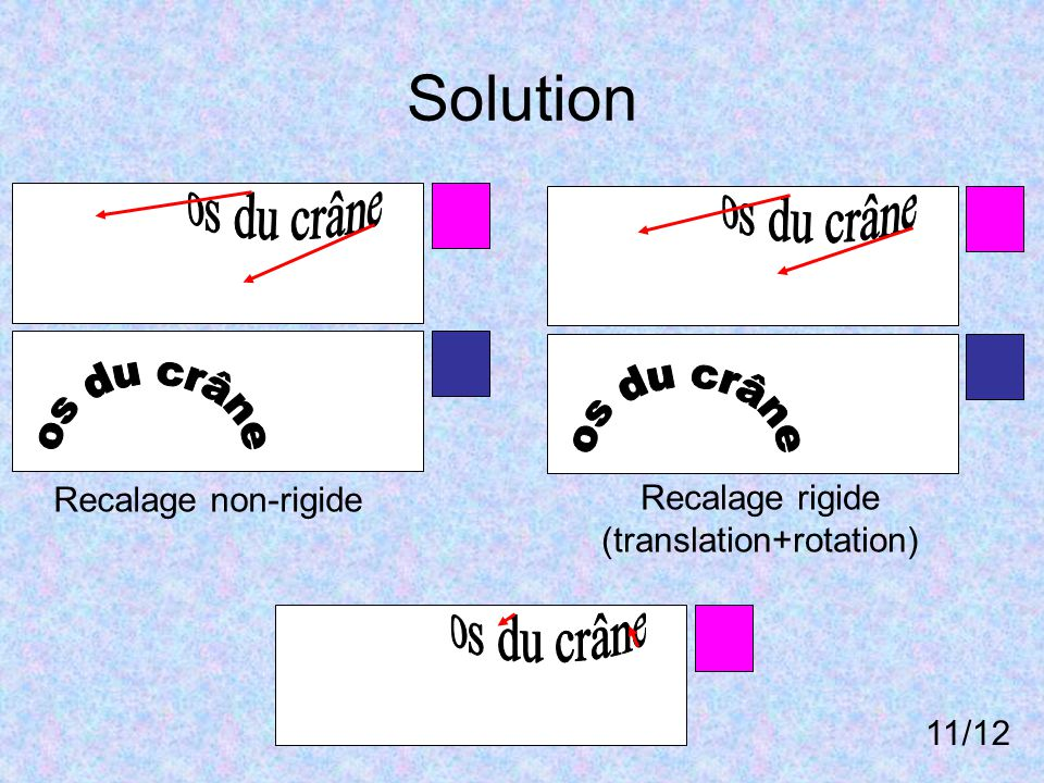 Solution Recalage non-rigide Recalage rigide (translation+rotation) 11/12