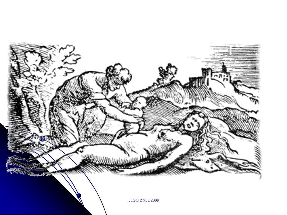 JLGO 24/09/2009 Pourquoi réduire Une césarienne >opération >complications.