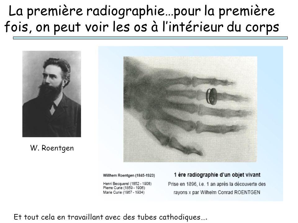 La première radiographie…pour la première fois, on peut voir les os à lintérieur du corps W. Roentgen Et tout cela en travaillant avec des tubes catho