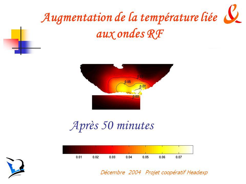 Décembre 2004 Projet coopératif Headexp Après 50 minutes Augmentation de la température liée aux ondes RF