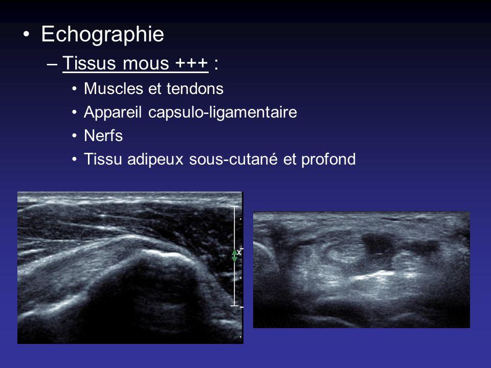 Echographie –Tissus mous +++ : Muscles et tendons Appareil capsulo-ligamentaire Nerfs Tissu adipeux sous-cutané et profond