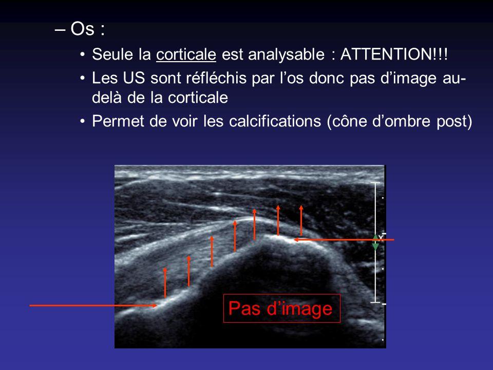 –Os : Seule la corticale est analysable : ATTENTION!!! Les US sont réfléchis par los donc pas dimage au- delà de la corticale Permet de voir les calci