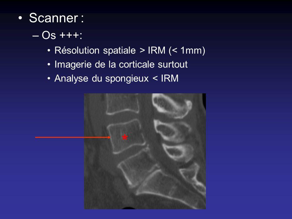 Scanner : –Os +++: Résolution spatiale > IRM (< 1mm) Imagerie de la corticale surtout Analyse du spongieux < IRM *