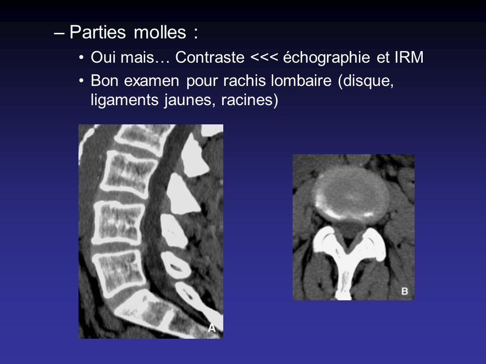 –Parties molles : Oui mais… Contraste <<< échographie et IRM Bon examen pour rachis lombaire (disque, ligaments jaunes, racines)