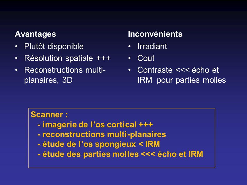 Avantages Plutôt disponible Résolution spatiale +++ Reconstructions multi- planaires, 3D Inconvénients Irradiant Cout Contraste <<< écho et IRM pour p