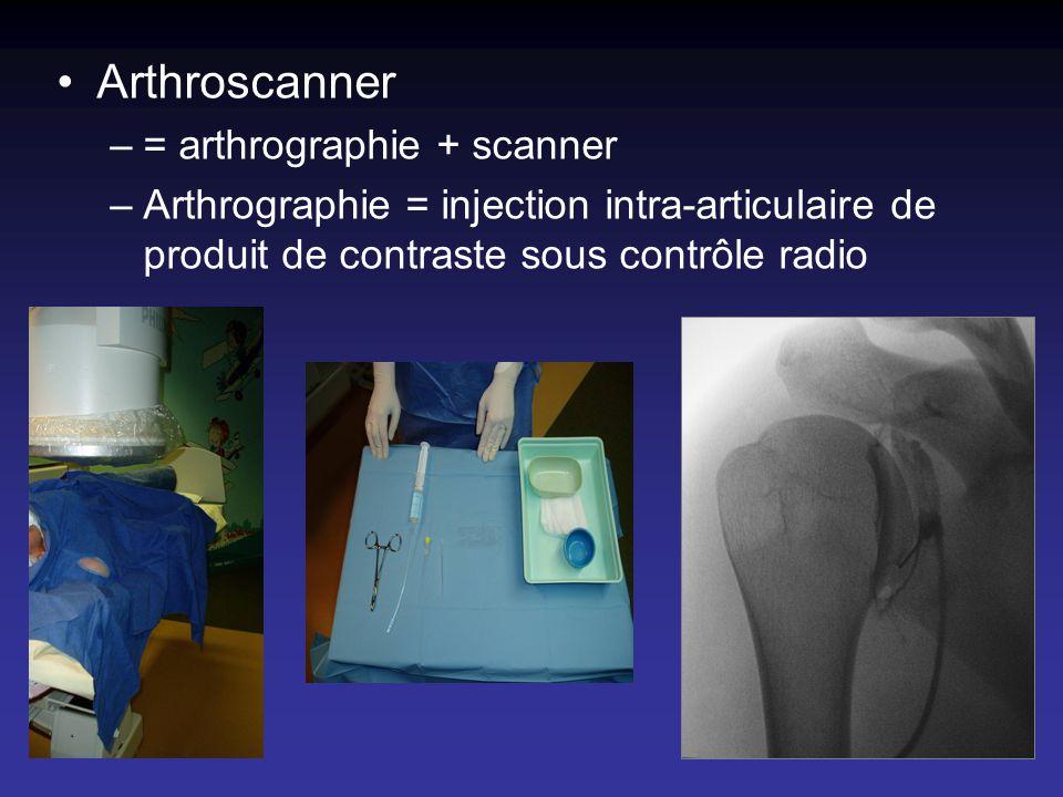 Arthroscanner –= arthrographie + scanner –Arthrographie = injection intra-articulaire de produit de contraste sous contrôle radio
