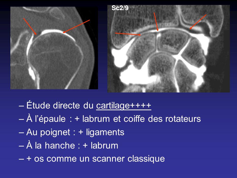 –Étude directe du cartilage++++ –À lépaule : + labrum et coiffe des rotateurs –Au poignet : + ligaments –À la hanche : + labrum –+ os comme un scanner