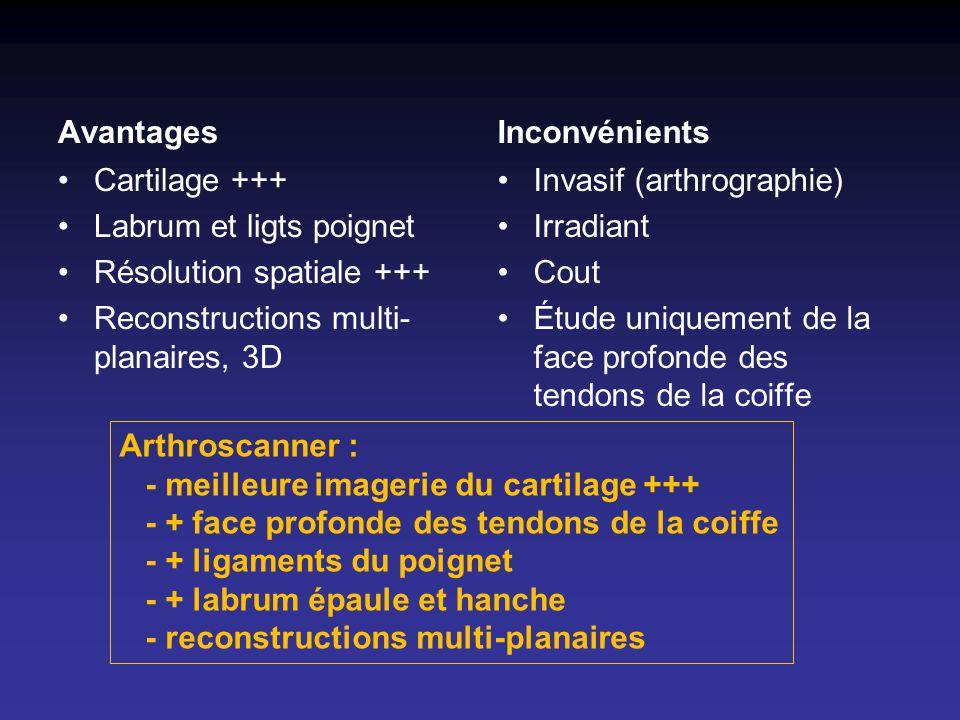 Avantages Cartilage +++ Labrum et ligts poignet Résolution spatiale +++ Reconstructions multi- planaires, 3D Inconvénients Invasif (arthrographie) Irr
