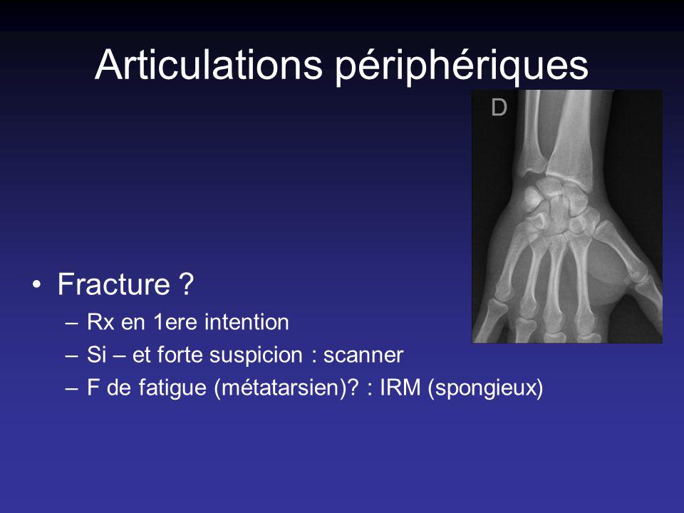 Articulations périphériques Fracture ? –Rx en 1ere intention –Si – et forte suspicion : scanner –F de fatigue (métatarsien)? : IRM (spongieux)