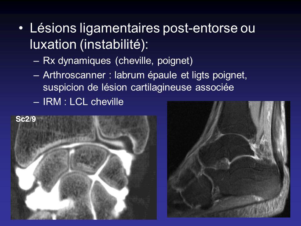 Lésions ligamentaires post-entorse ou luxation (instabilité): –Rx dynamiques (cheville, poignet) –Arthroscanner : labrum épaule et ligts poignet, susp