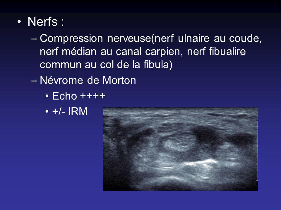 Nerfs : –Compression nerveuse(nerf ulnaire au coude, nerf médian au canal carpien, nerf fibualire commun au col de la fibula) –Névrome de Morton Echo
