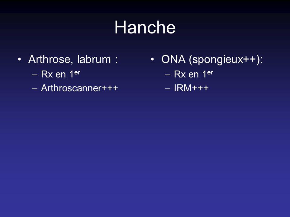 Hanche Arthrose, labrum : –Rx en 1 er –Arthroscanner+++ ONA (spongieux++): –Rx en 1 er –IRM+++