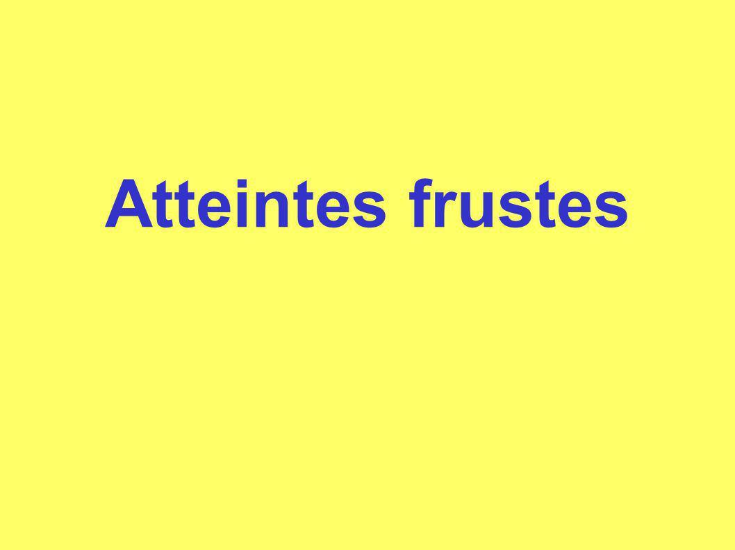Atteintes frustes