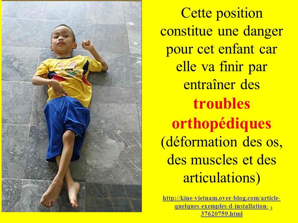 Cette position constitue une danger pour cet enfant car elle va finir par entraîner des troubles orthopédiques (déformation des os, des muscles et des