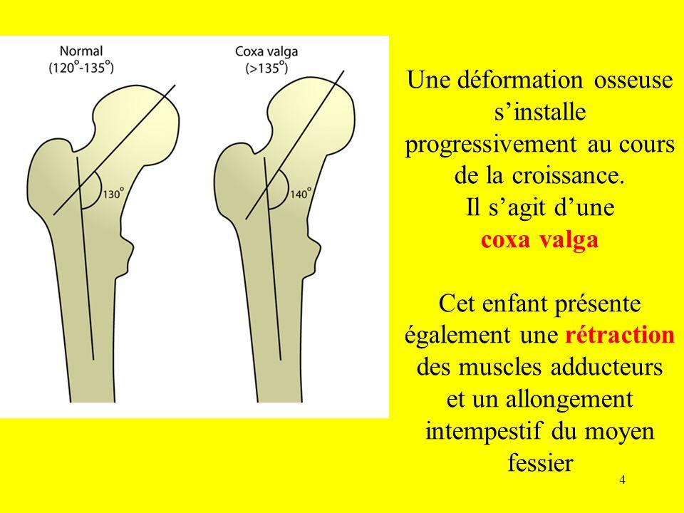 Une déformation osseuse sinstalle progressivement au cours de la croissance. Il sagit dune coxa valga Cet enfant présente également une rétraction des