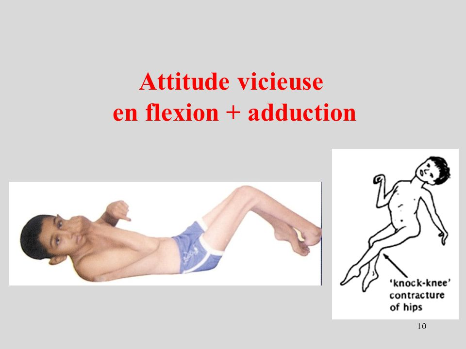 Attitude vicieuse en flexion + adduction 10