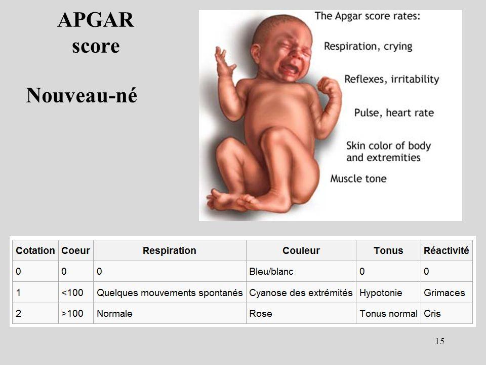 APGAR score Nouveau-né 15