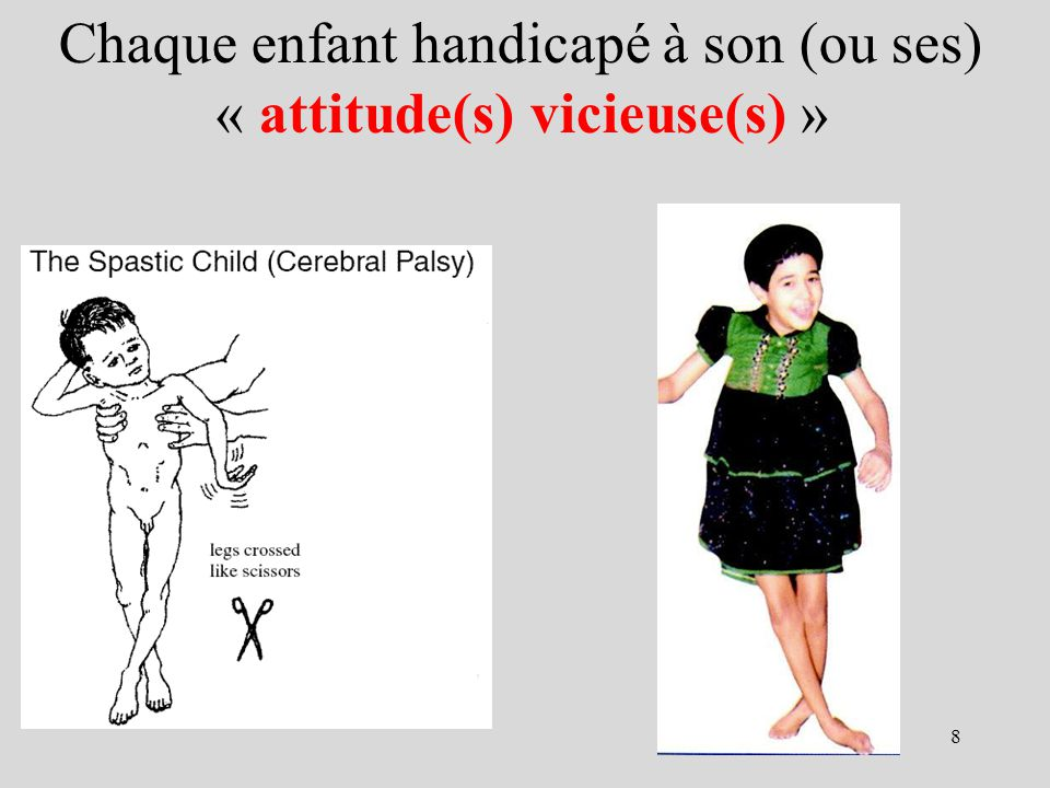 Attitude vicieuse en extension + rotation interne des membres sup et en ciseaux des membres inférieurs 9